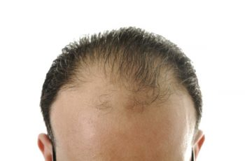 Hairloss-Blocker-2