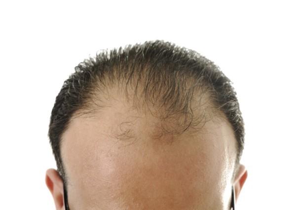Conheça o Hairloss Blocker, que Acaba com a Queda e Devolve os seus Cabelos